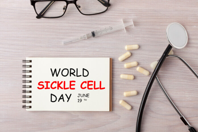 World Sickle Cell Day – June 19, 2020
